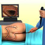 Можно ли проводить колоноскопию кишечника при геморрое