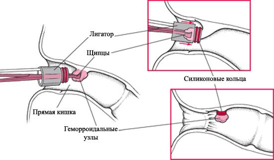 Все о легировании геморроидальных узлов