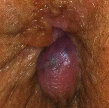 Вид тромба