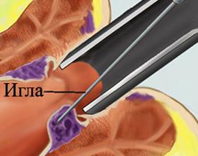 Склеротерапия геморроидальных узлов: что это, как проводится, отзывы