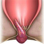 Геморройная шишка: причины, симптомы и как лечить