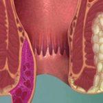 Виды и стадии геморроя: классификация и способы лечения