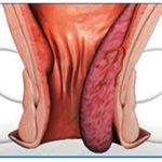 Геморрой 4 стадии: причины, лечение с операцией и без