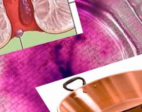 Ванночки с марганцовкой при геморрое: полезные свойства и как применять