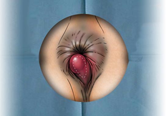 Геморрой тромбированный