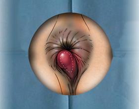 Тромбированный геморрой: что это, причины, симптомы и как лечить