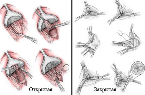 Открытая и закрытая операция