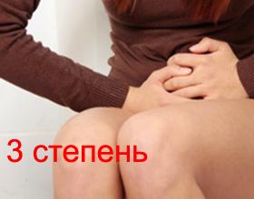 Геморрой 3 степени: причины, симптомы, лечение (с операцией и без)