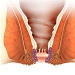 Внутренний геморрой у женщин: причины, симптомы и как лечить