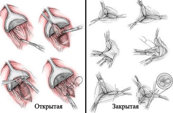 Закрытая и открытая геморроидэктомия