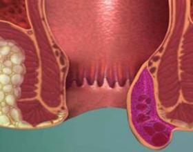 Если лопнул геморроидальный узел: причины и что делать